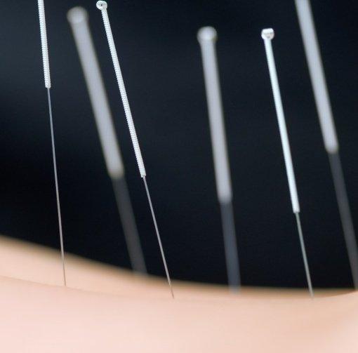 Best acupuncture in baltimore